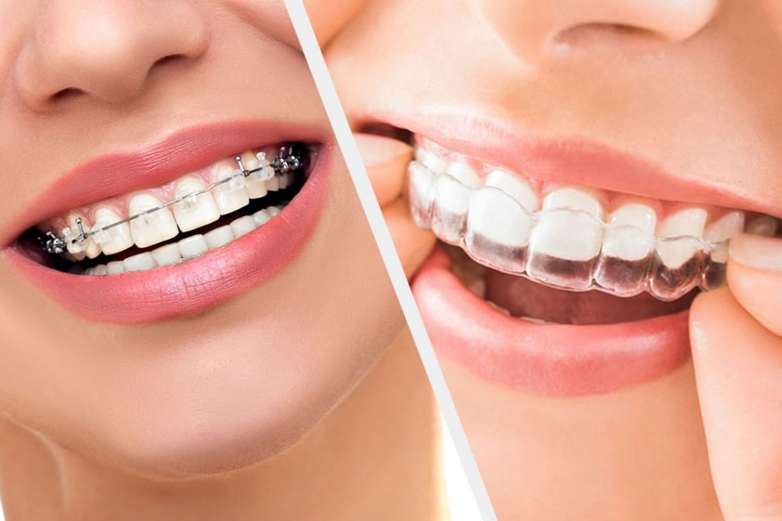 What-Different-about-Invisible-Braces.jpg