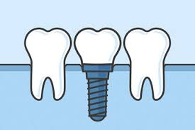 Why-Dental-Implants-are-Growing-in-Popularity.jpg