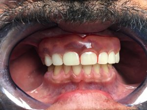 Denture - Before and After Photos