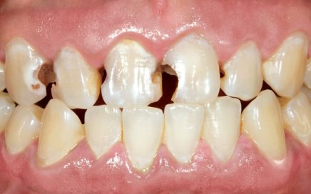 Affordable-Emax-Crowns-in-San-Jose-Ca-and-Newark-Ca.jpg