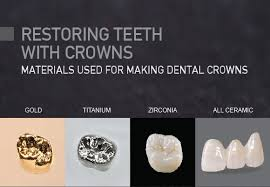 Best-Material-for-Your-Dental-Crown.jpg