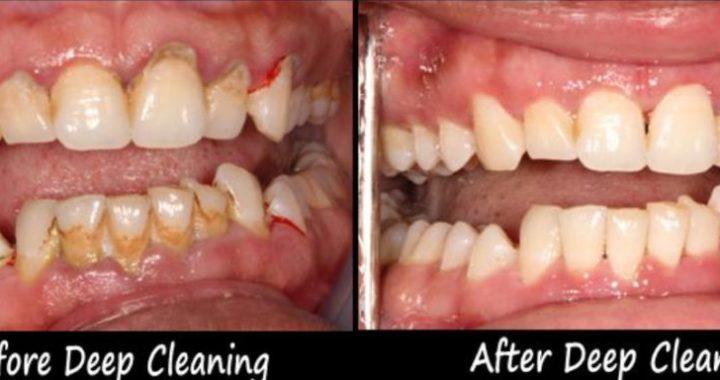 Deep-Cleaning-Process.jpg