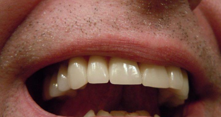 Dental-Crowns-and-Bridges.jpg