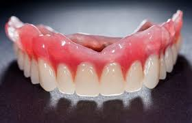 Denture-adhesive-and-when-it-is-needed.jpg
