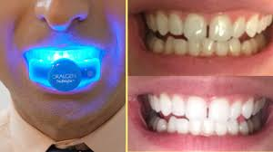 How-to-Whiten-the-Teeth-at-Home.jpg