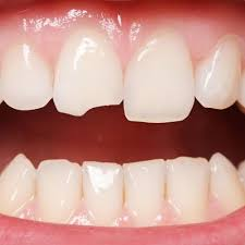 Options-for-cracked-tooth-at-Luminous-Smile-Dental.jpg