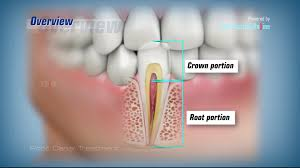 Root-Canal-and-Root-Canal-procedure.jpg