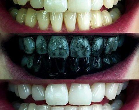 The-Weirdest-Teeth-Whitening.jpg August 17, 2020
