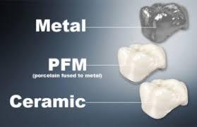 Three-Types-of-Dental-Crown.jpg