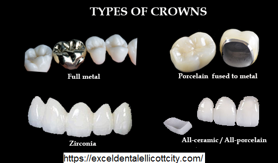 Types-of-Dental-Crown.png August 17, 2020