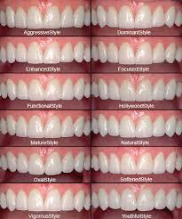 Types-of-Dental-Veneers.jpg