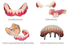 Types-of-Denture.jpg