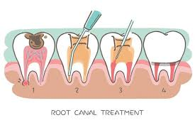 root-canals.jpg
