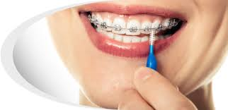 Toothbrush-to-use-in-Orthodontic-Braces.jpg