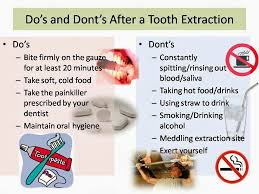 What to do after a tooth extraction